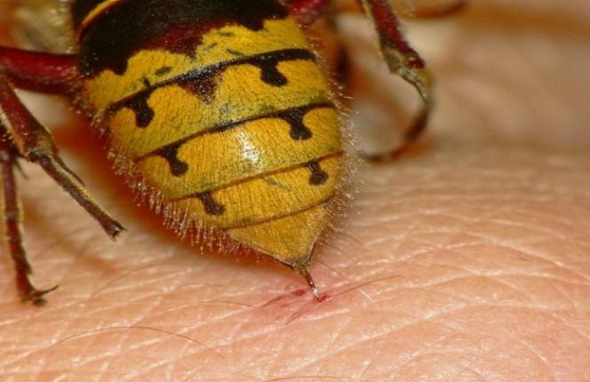 укус пчел