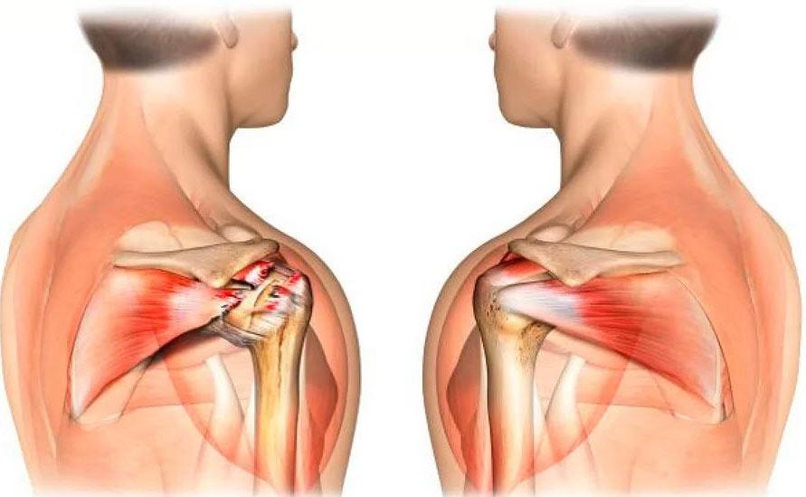 Укрепление связок и мышц плечевого пояса
