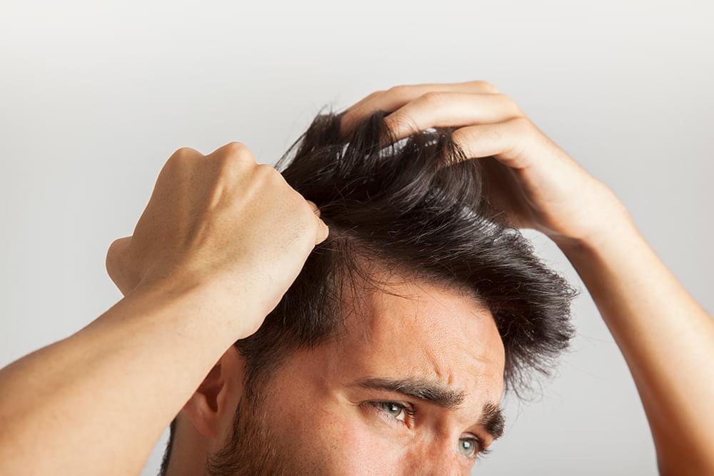 Как предотвратить выпадение волос у мужчин