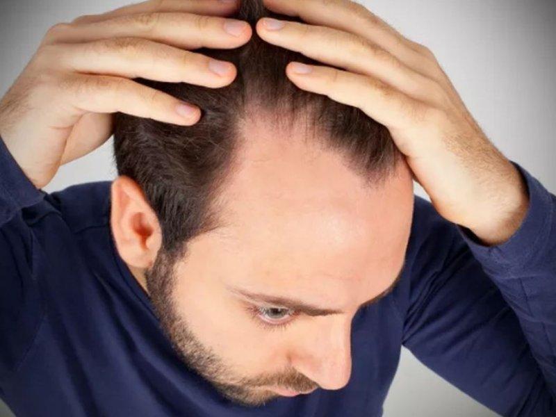 Облысение - каковы причины и новые методы лечения
